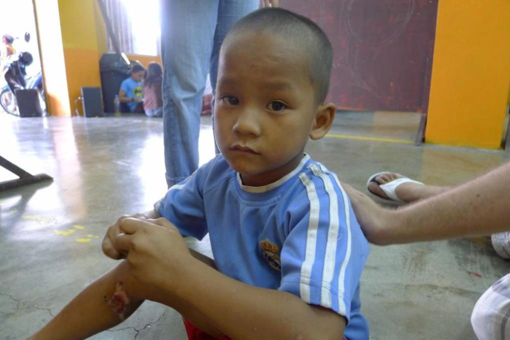 Philippines: While playing table tennis with a street child at the church's student centre one afternoon, a team member introduced Han to a young boy with a big wound on his left leg. More Info