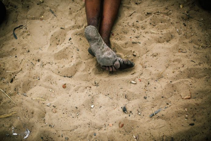 Angola: Bushmen walks kilometers with their foot for hunting the wild animal. After his hunt, he was resting from a long walk. More Info