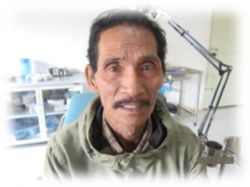An elderly man receives a new set of teeth at Mercy Teams Internationals medical clinic at the Japanese Well village at the Thai-Burma border, as well as a new heart.